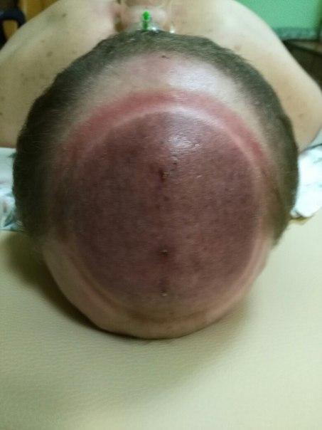 голова6