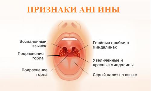Панлейкопения лечение препараты
