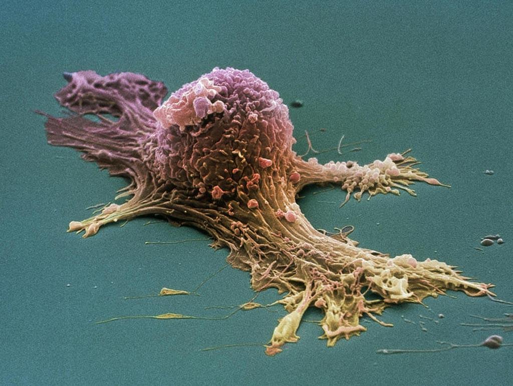 рак клетка