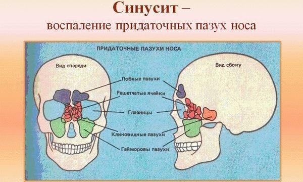 синисит